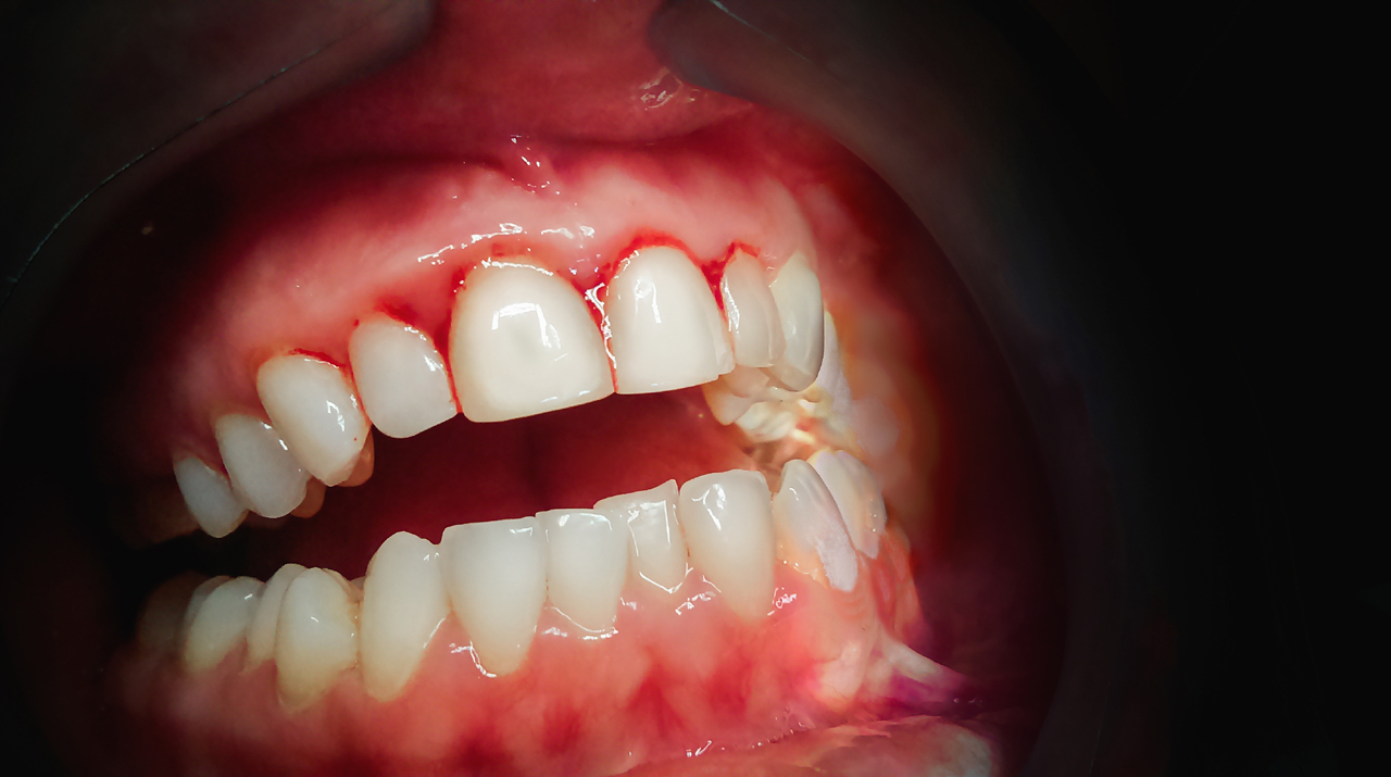 How To Prevent Trench Mouth