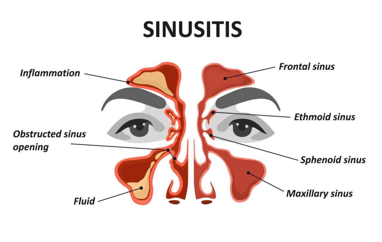 sinus infection can cause toothache
