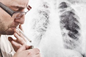 smoker with chronic lung disease