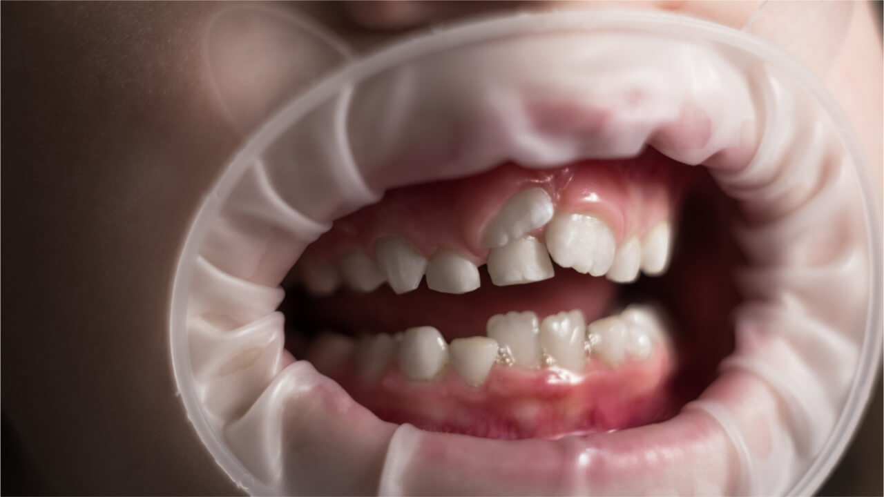 permanent teeth eruption problems