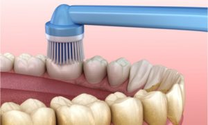 Brushing teeth to remove plaque.